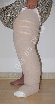 Why Short-Stretch Bandages Are Used For The Treatment Of Lymphedema: