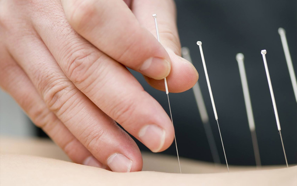 Benefits of Dry needling